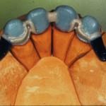 Правила изготовления интерлоков в бюгельных  протезах с креплением на простейших замках.